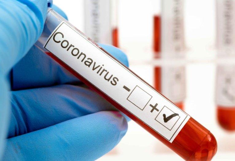 Otros dos positivos de coronavirus en Suardi